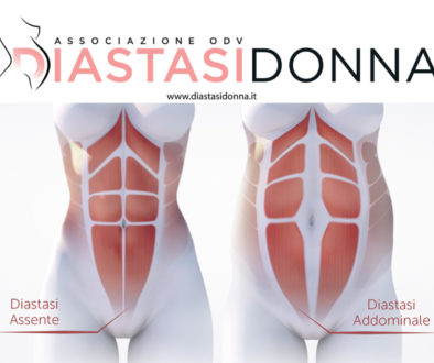 Diastasi-Donna-addominali